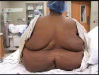 BT4 - Muscle Mass & Obesity