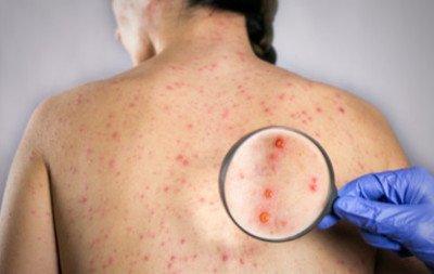 Antivaccination/Anti-Vaxxers - Vaccine Conspiracy Theories