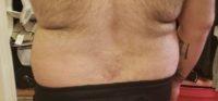 Best Diet to Decrease My Body Fat - Chris Ribeiro New Jersey