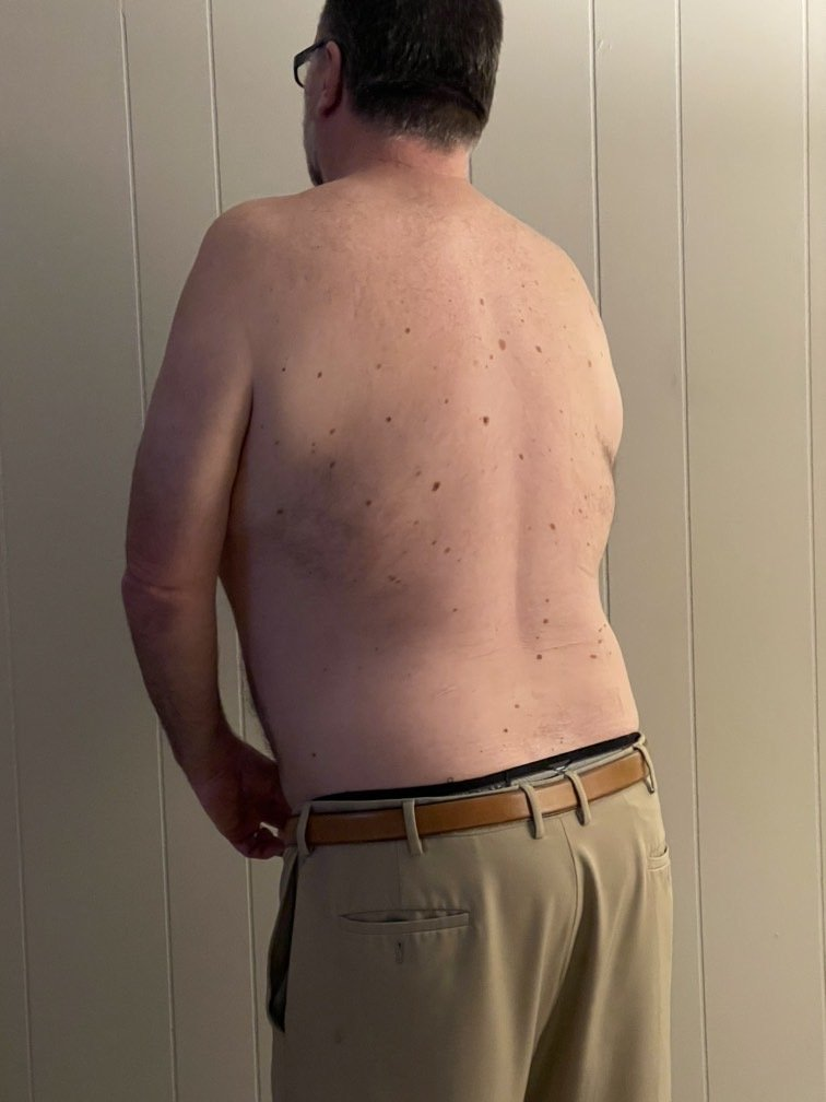 Fellow One Research Free Body Type Shape Quiz Calculator, The Four Body Types Research Participant 429, Body Type Two (BT2) Male