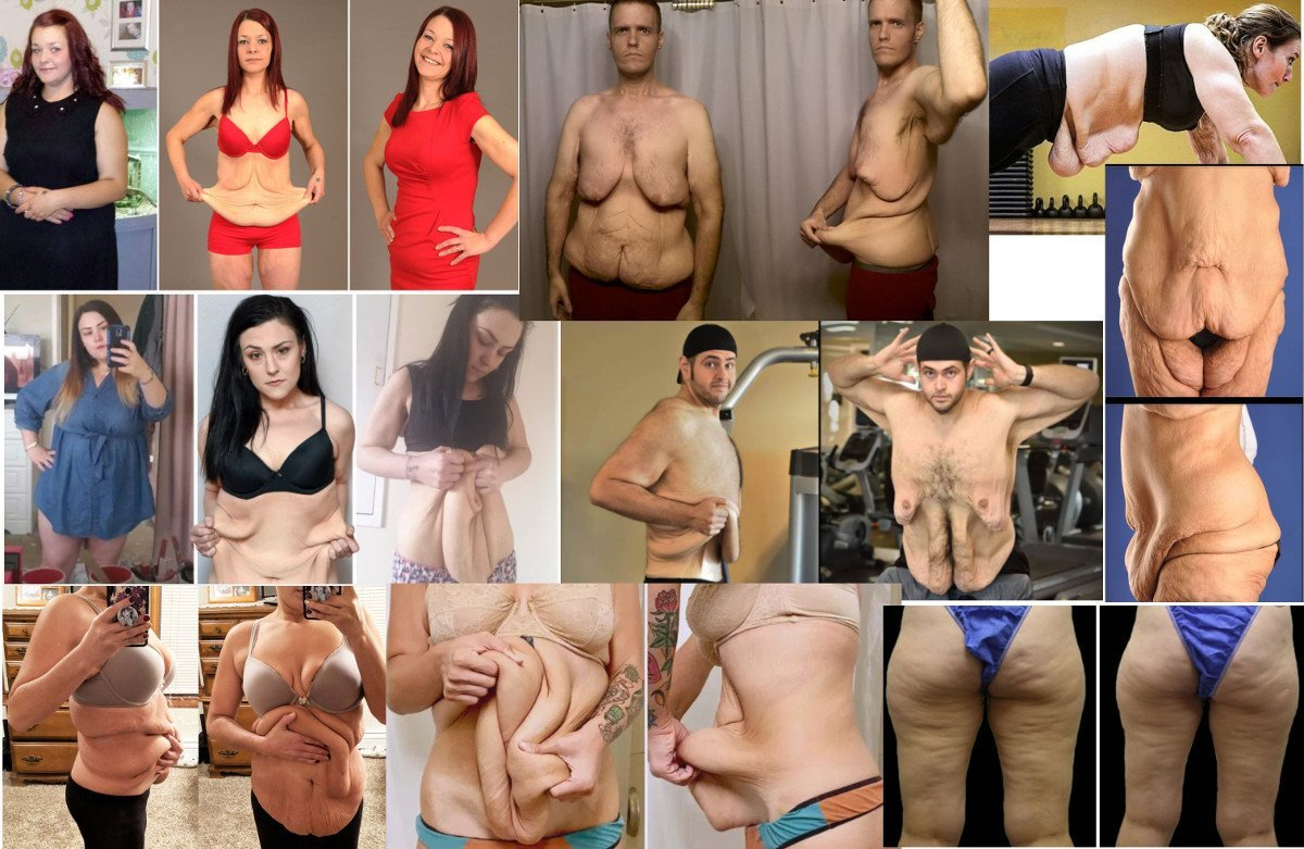 Obesity Disease - Skinny Fat, Cellulite, and Loose/Saggy Skin After Weight Loss